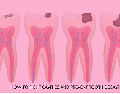 HOW TO FIGHT CAVITIES AND PREVENT TOOTH DECAY?