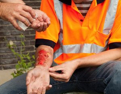 Most Common Work-Related Burn Injuries