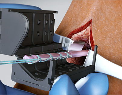 SPEEDTRAP™ Graft Prep System