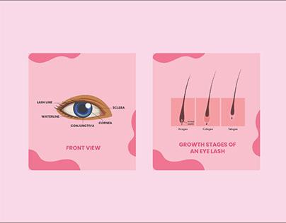 Photo of the eye showing anatomy