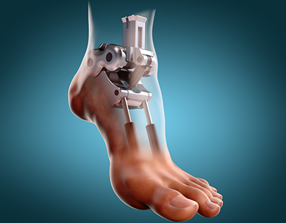 Mechanical foot