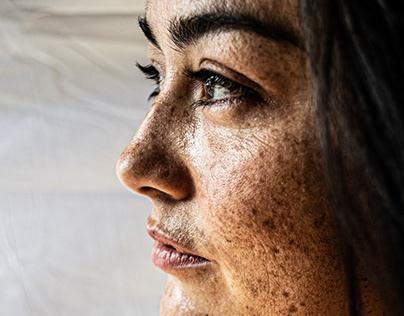 Freckles - Golden Hour