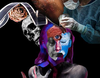 """Excision"", digital collage"