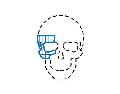 Visualising a skull implant's production.