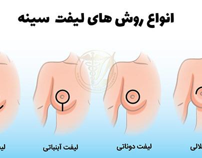 انواع روش های جراحی برای لیفت سینه