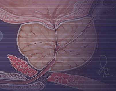 MEDICAL ILLUSTRATION: Prostate Enlargement Project