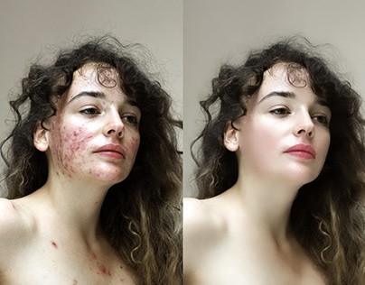 Object Remove And Beauty Retouch