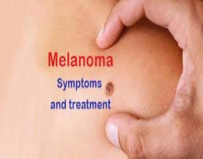 MELANOMA SKIN CANCER : CAUSES AND SYMPTOMS