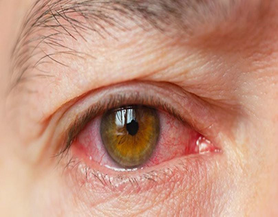 CAUSES OF DRY EYES