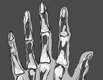 A draw of a hand's radiography.