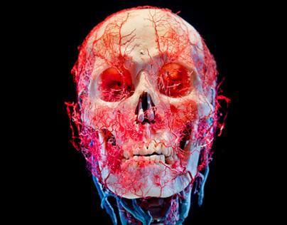 Bodies & Skulls