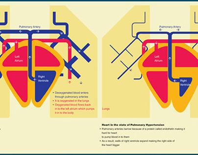 MeDesign - Pulmonary Hypertension
