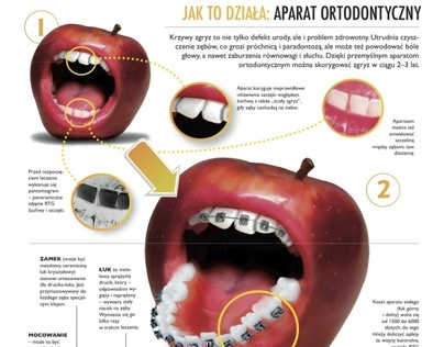 Infographics: How dental braces work