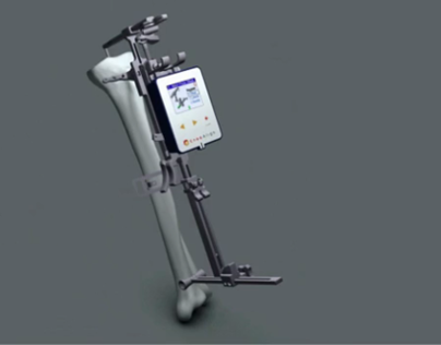Orthopedic Medical Device Animation (2010)
