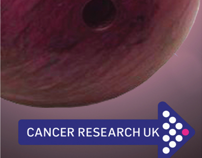 Cancer Research UK. Testicular Cancer