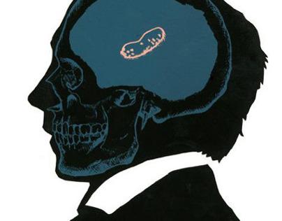 Elitist Peanut Brain